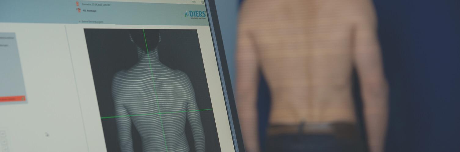 Rückenvermessung in der orthopädischen Behandlung