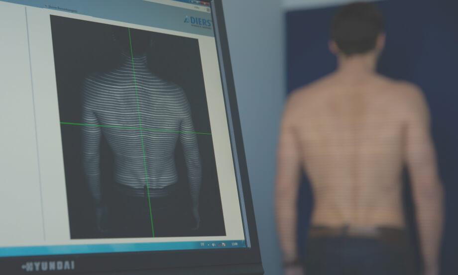Rückenscan in der orthopädischen Praxis